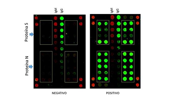 SCOVAM, un nuevo ensayo serológico para COVID-19